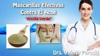 Mascarillas Naturales Para el ACNÉ Doctora Valeria Peroski