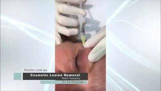 Cosmetic Lesion Removal From Eyelid | Doctor Ed | The DOC Clinic