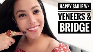 Panu na-achieve ang Pearly White Teeth ko (VENEERS & BRIDGE)
