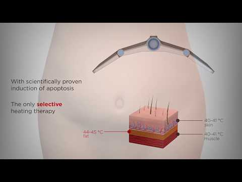 Beverly Hills Med Spa Vanquish Clinical Animation