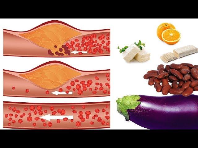 9 Makanan Penurun Kolesterol LDL Tinggi dengan Cepat