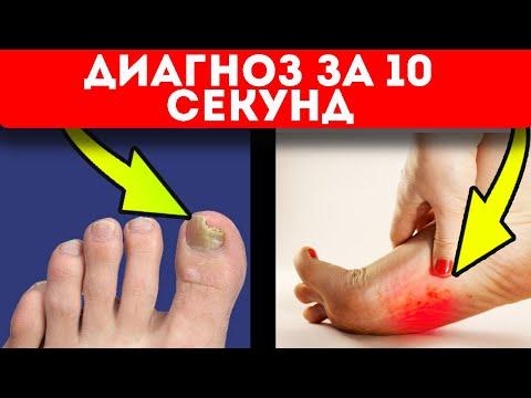 Даже о таких болезнях можно узнать заранее, если обратить внимание на стопы