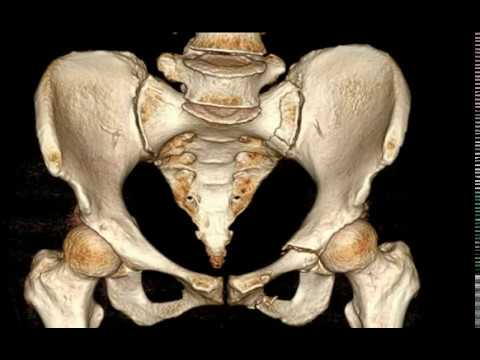 Pubic bone Superior and Inferior Rami Fracture - YouTube