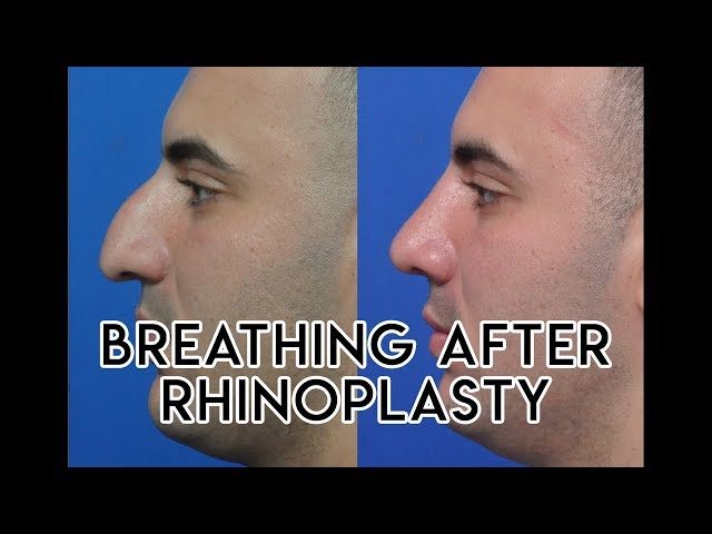 Breathing After Rhinoplasty