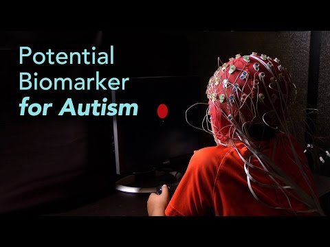 science-talk:-brainwave-test-could-improve-autism-diagnosis-and-classification