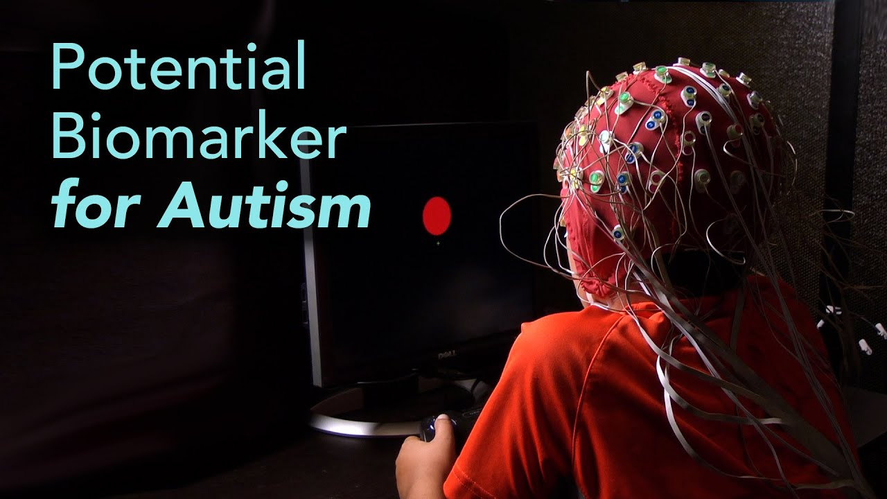 Science Talk Brainwave Test Could Improve Autism Diagnosis and