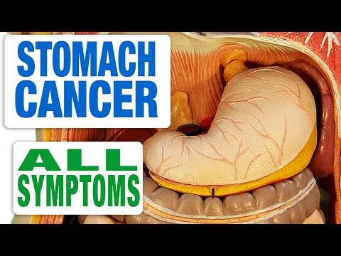 Stomach Cancer - All Symptoms