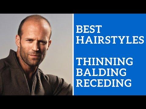 Best Men's Hairstyles for Thinning Hair, Balding Hair, or Receding Hair Line