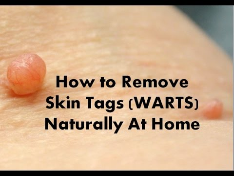 Remove Skin Tags Face Naturally