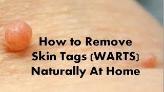 How to Remove Skin Tags WARTS Naturally At Home Quickly