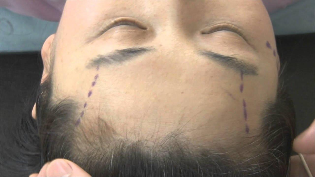 [Eng  Ver ] Korea plastic surgery Anti-Aging : Forehead-Brow Lift (2)