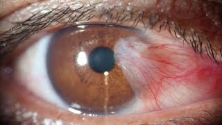 Pterygium Excision With Rotational Flap  Conjunctivoplasty By Dr Sudhir Singh.