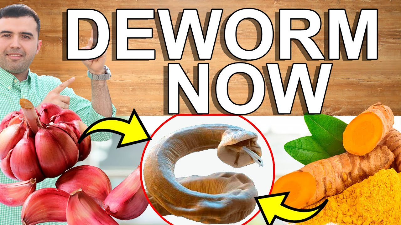 DEWORM NOW! - How to Parasite Cleanse at Home - Home Remedies That Cleanse And Detoxify Your Colon