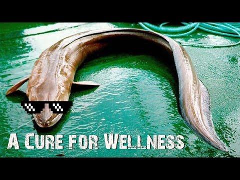 BETEG FILMAJÁNLÓ: A Cure for Wellness