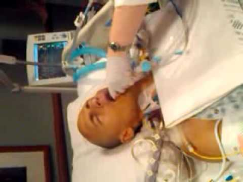 Breathing Tube Removal