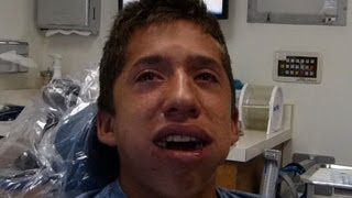 Alex After Anesthesia - as seen on Jimmy Kimmel Live!