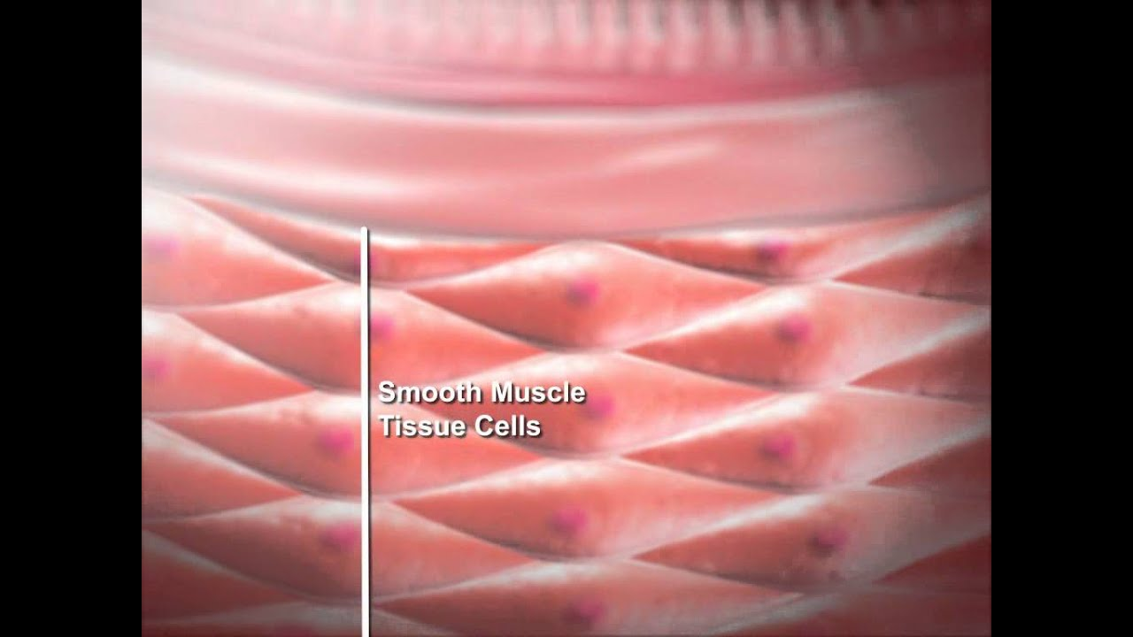 muscle tissue report Muscle tissue + report muscle tissue 3 types of muscle tissue • skeletal muscle - attaches to bone, skin or fascia - striated with light & dark bands visible with scope - voluntary control of.