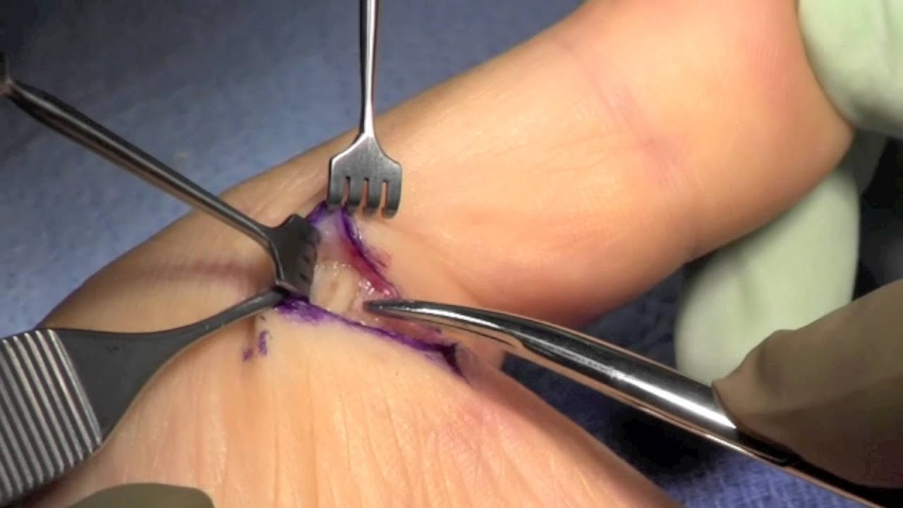 Trigger thumb release surg
