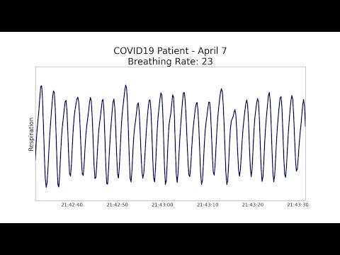 Non-contact health monitoring for COVID-19