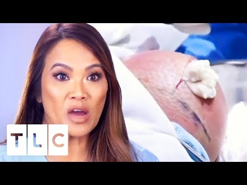 I Can't Watch! | Dr. Pimple Popper