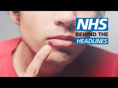 Honey 'as Good As Antiviral Creams' For Cold Sores | NHS Behind The Headlines