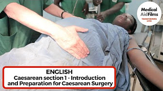 c section or natural birth with twins - cesarean section