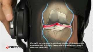 Learn About Knee Osteoarthritis (OA)