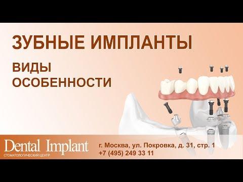 имплант сколько стоит