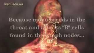 Symptoms of Mono - Mono Symptoms - Infectious Mononucleosis Disease