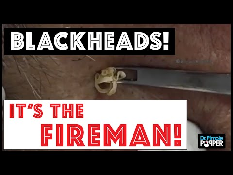 """don't-miss-these-huge-blackhead-extractions-in-""""the-fireman"""""""