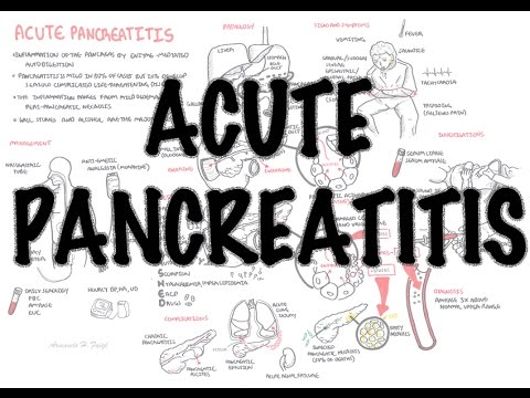 Acute Pancreatitis - Overview