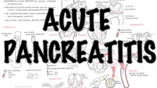 Pankreatitis Akut, Kondisi Peradangan pada Pankreas yang Terjadi secara Tiba-tiba.