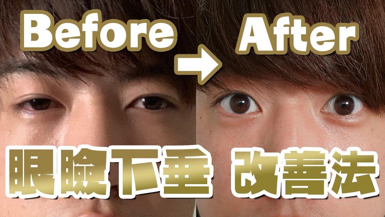眼瞼 下垂 トレーニング