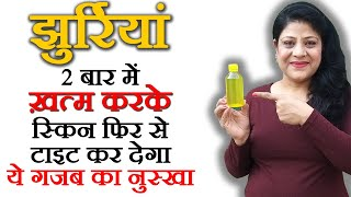 Wrinkles - Home Remedies For Wrinkles on Under eyes, Forehead, Neck, Face - Beauty Pagent   Ep7