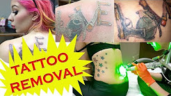 LASER TATTOO REMOVAL and Healing Process