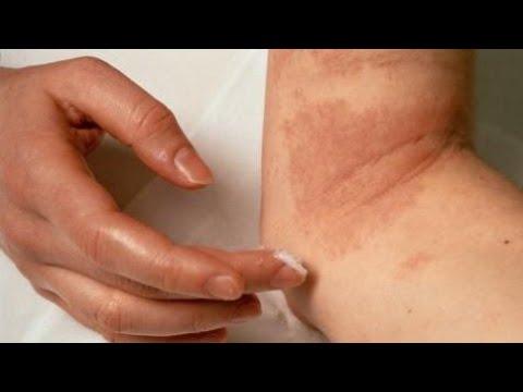 Pomada dermatite seborreica rosto