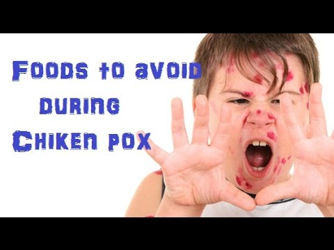 Home Remedy For Chicken Pox Scars Youtube