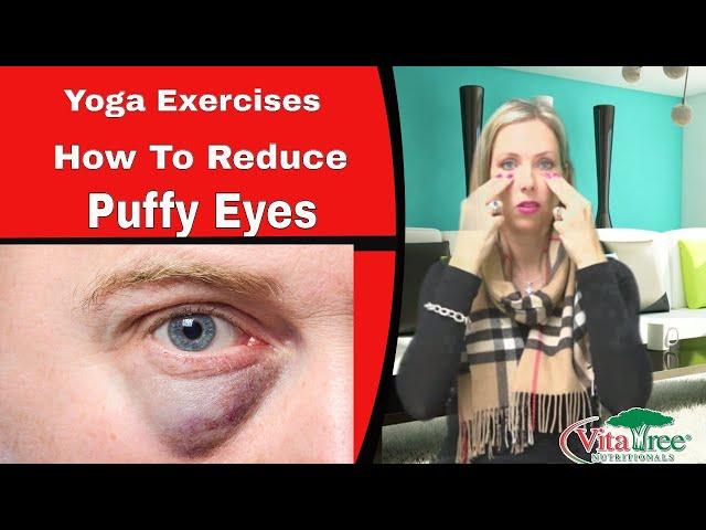 Yoga Exercises : How to Reduce Puffy Eyes - VitaLife Show Episode 116