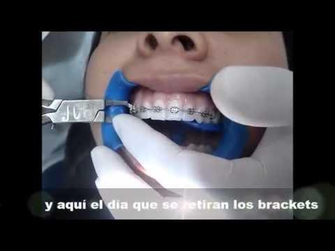 El dia que todos los pacientes de ortodoncia esperan, cuando se retiran los bracketts Dr Jonathan l