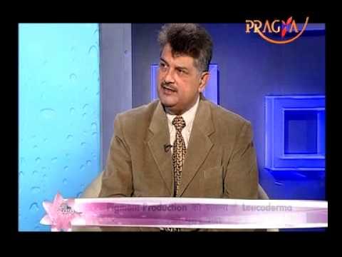 Leucoderma -  Ayurveda expert Mr.mukesh Sharma Talk About white Patches on skin