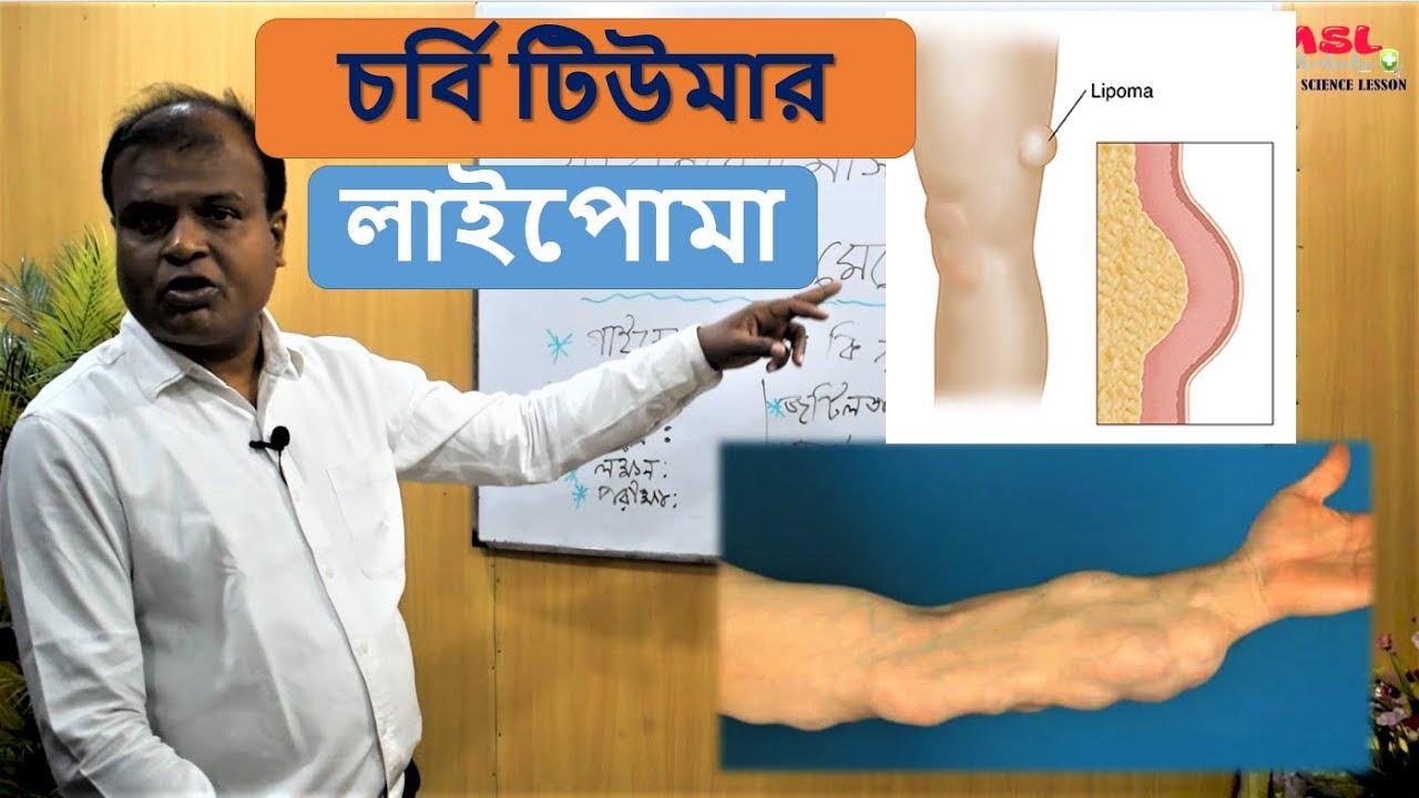 লাইপোমা বা চর্বি টিউমার | Lipoma or fat tumor Bangla | Dr Abdul Mannan