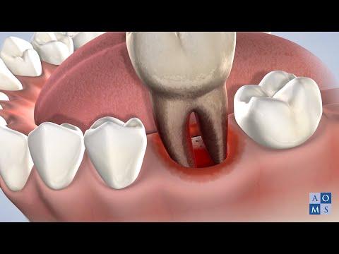 Post-Operative Instructions in Amarillo TX: Tooth Extraction | Amarillo Oral & Maxillofacial Surgery