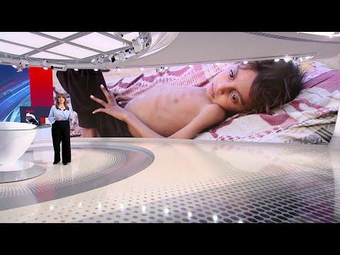 البنك الدولي: 70% من الشعب اليمني يواجهون خطر المجاعة  - 17:55-2021 / 8 / 4