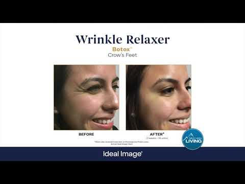 Ideal Image MedSpa- Skin, Face And Body Specialists