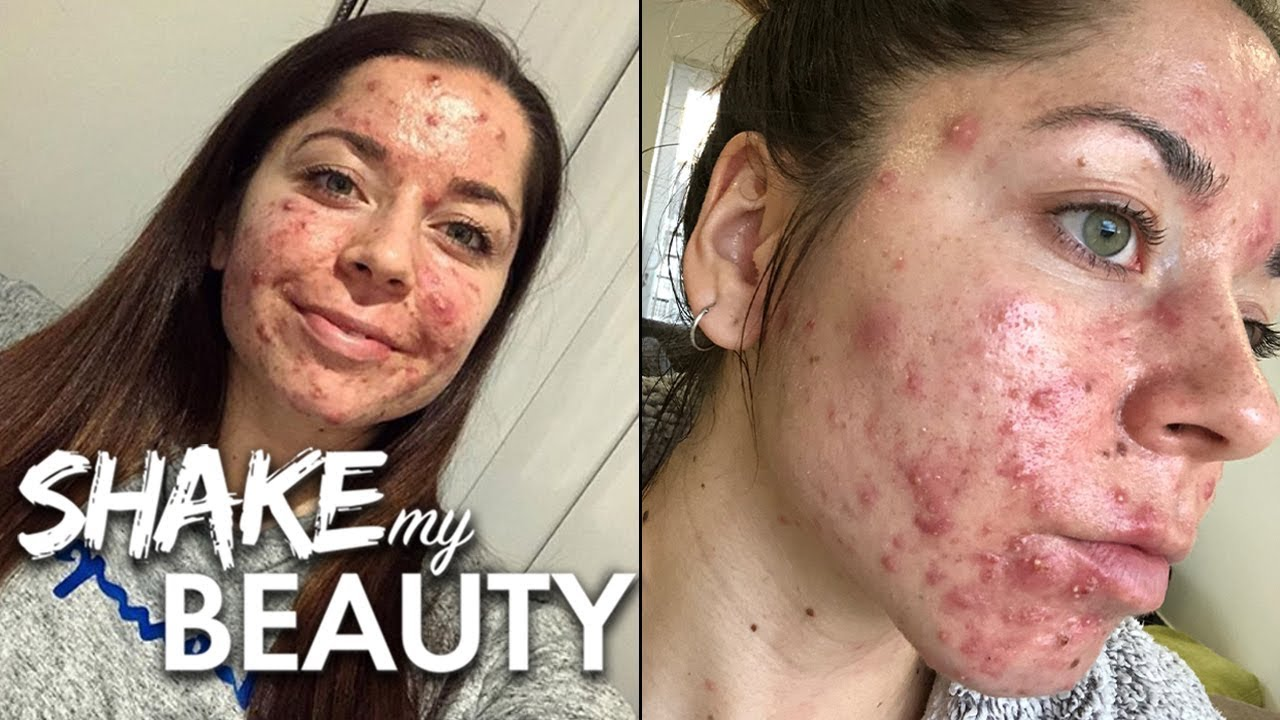 Doctors Told Me I Had The Worst Acne They D Ever Seen Shake My Beauty Youtube