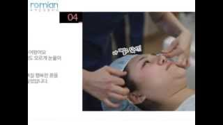 로미안성형외과-강남역 성형외과,사각턱수술효과,광대뼈 주…