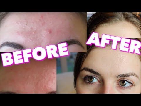 how-i-got-rid-of-my-forehead-acne!!!