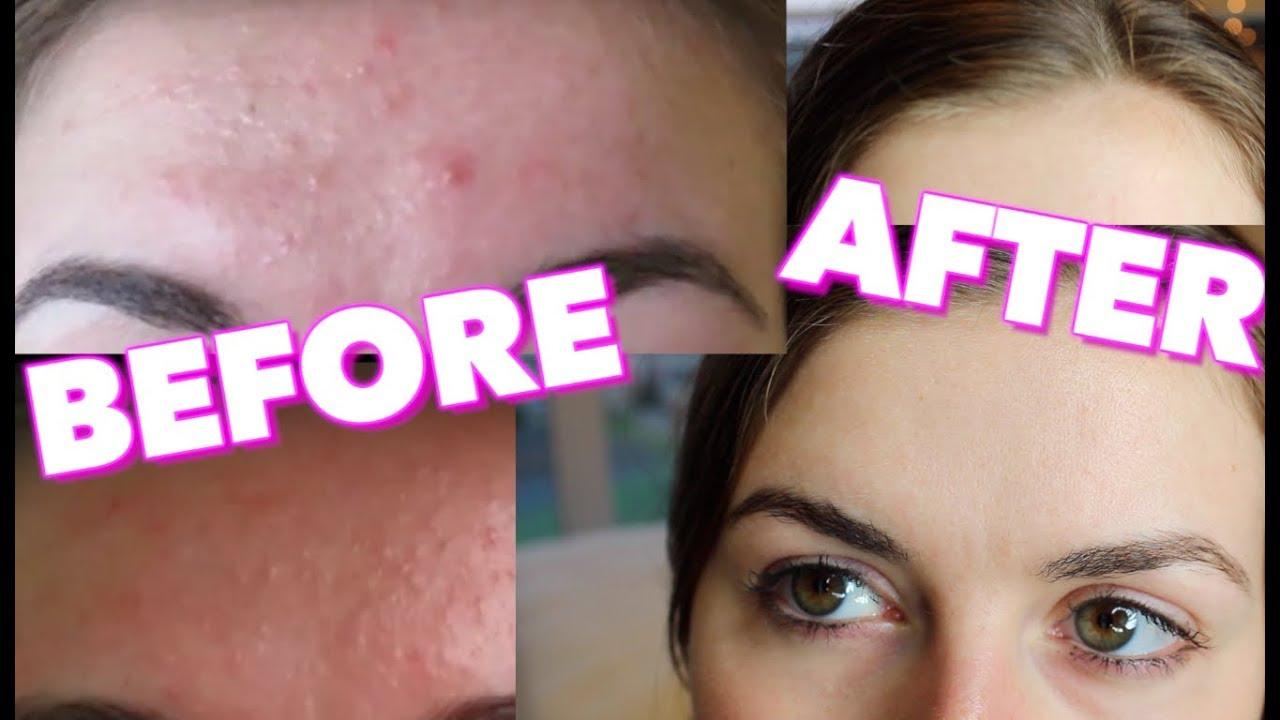 How I Got Rid Of My Forehead Acne Youtube