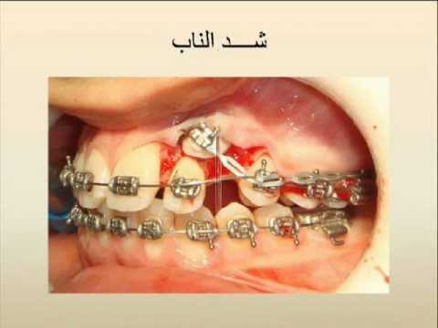 surgery exposure of buccal impacted canine