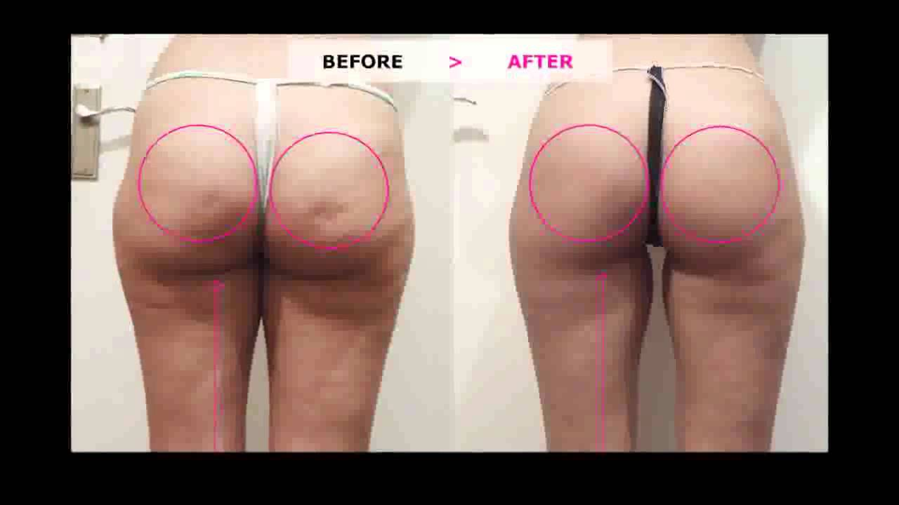 Cellulite cup youtube